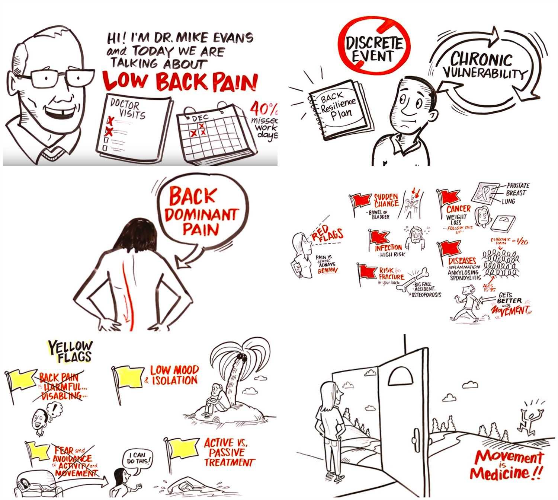 Il dolore lombare: conosciamolo meglio grazie a un video virale!